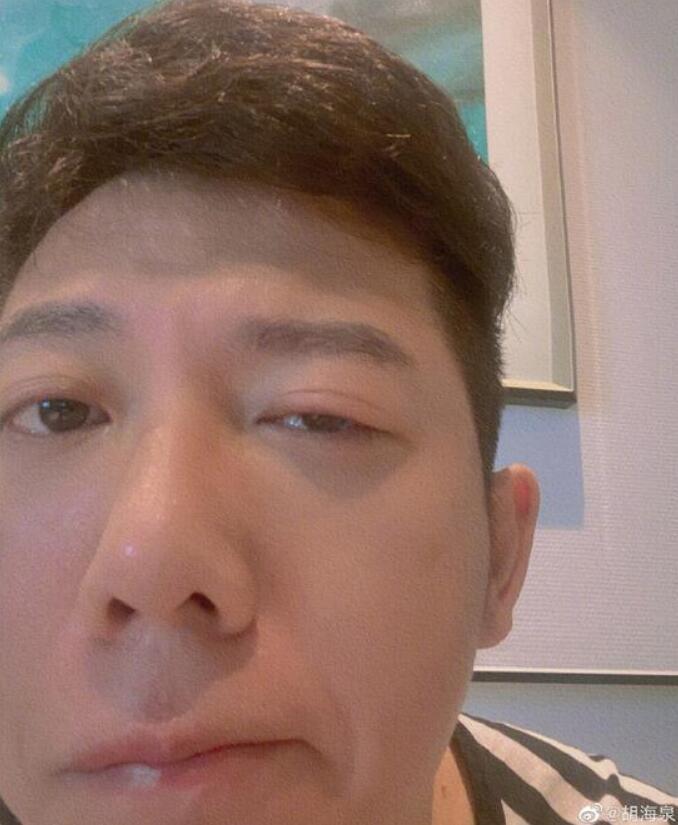 胡海泉右眼发炎红肿